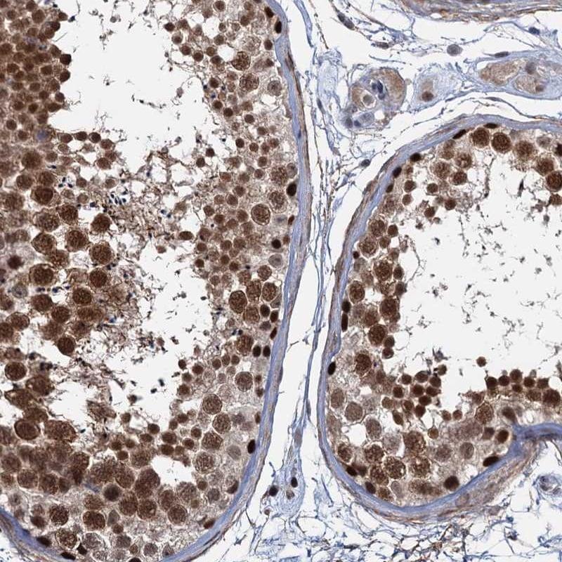 SAE1 Antibody in Immunohistochemistry (IHC)