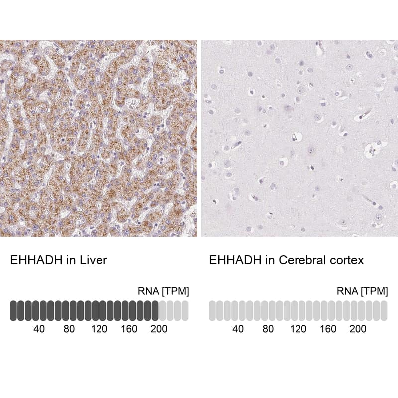 EHHADH Antibody in Relative expression