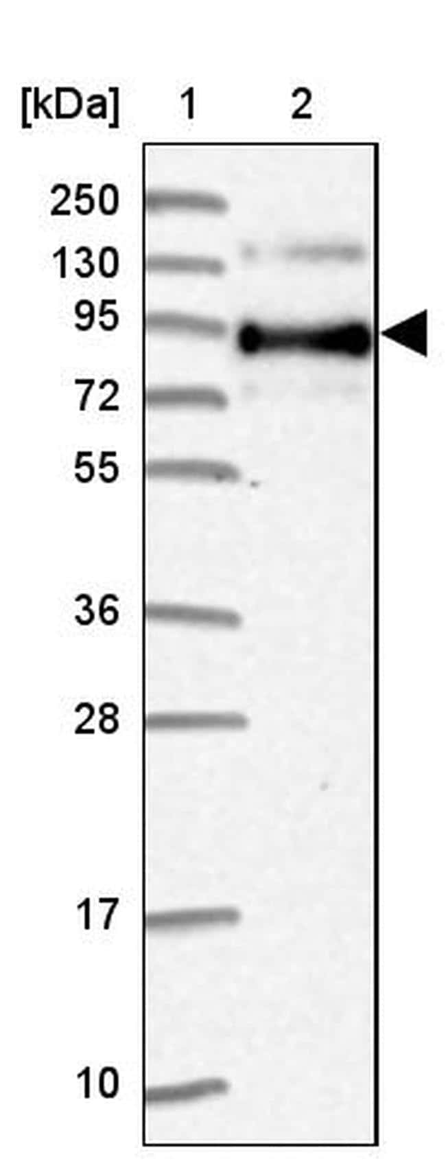 SLC39A6 Antibody in Western Blot (WB)