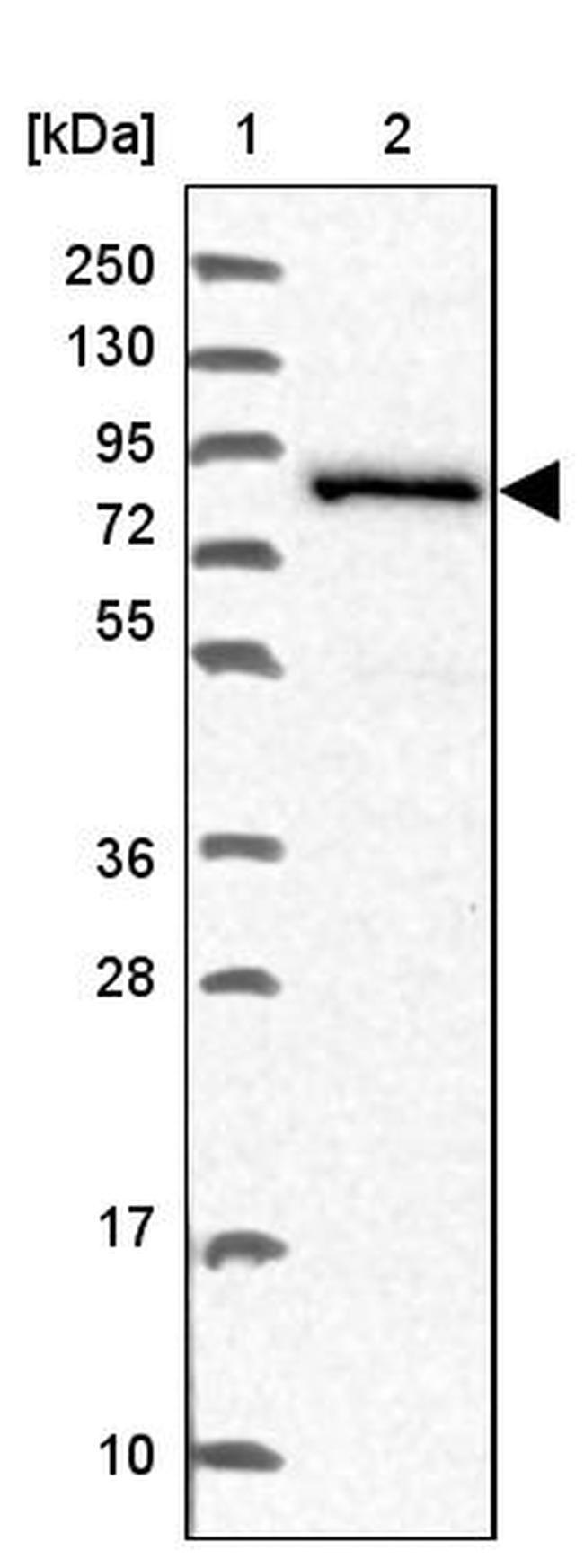 NCBP1 Antibody in Western Blot (WB)