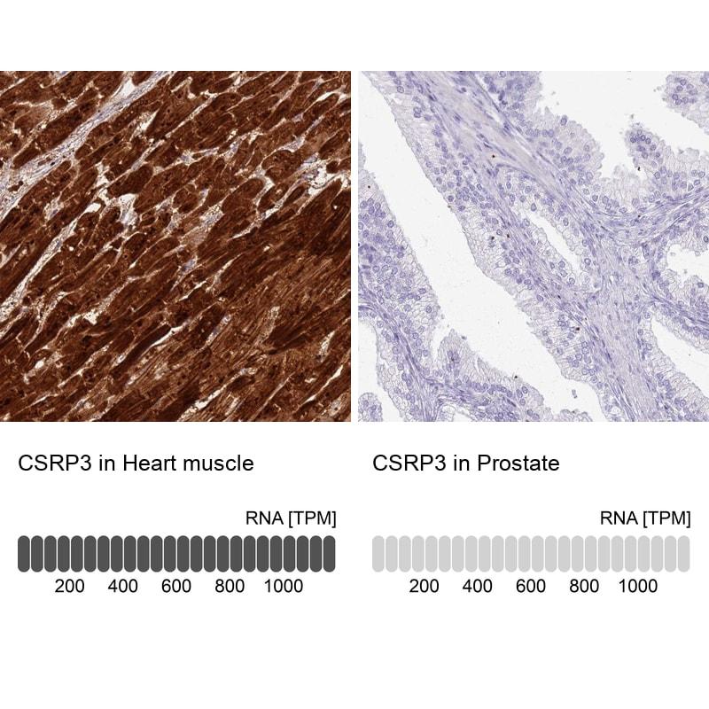 CSRP3 Antibody in Immunohistochemistry (IHC)