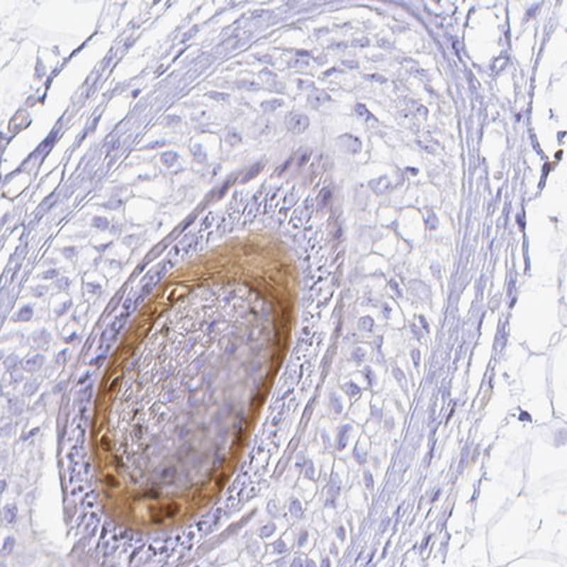 S100A3 Antibody in Immunohistochemistry (IHC)