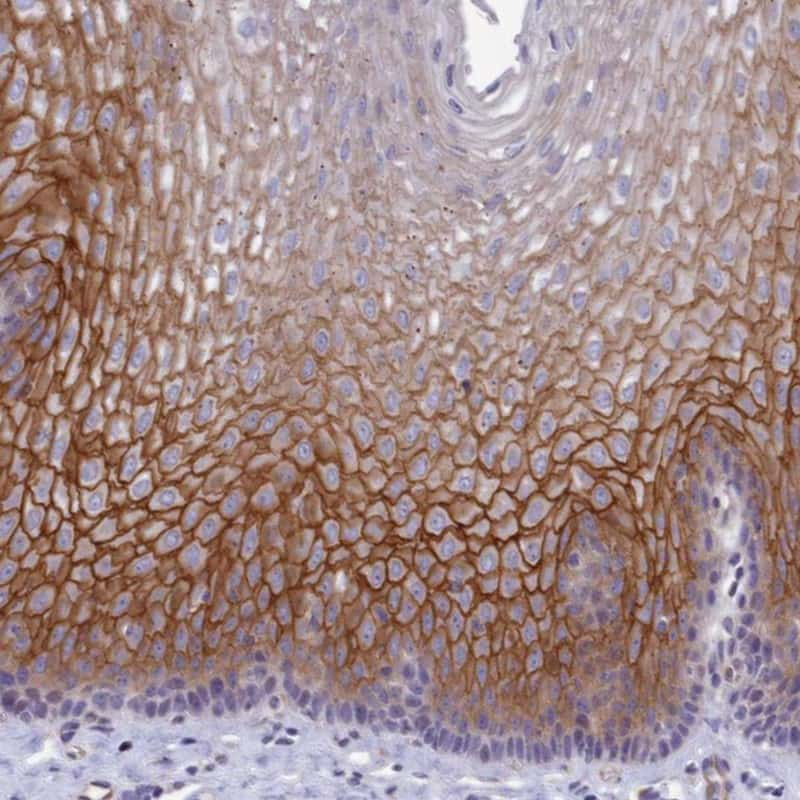 TROP2 Antibody in Immunohistochemistry (IHC)
