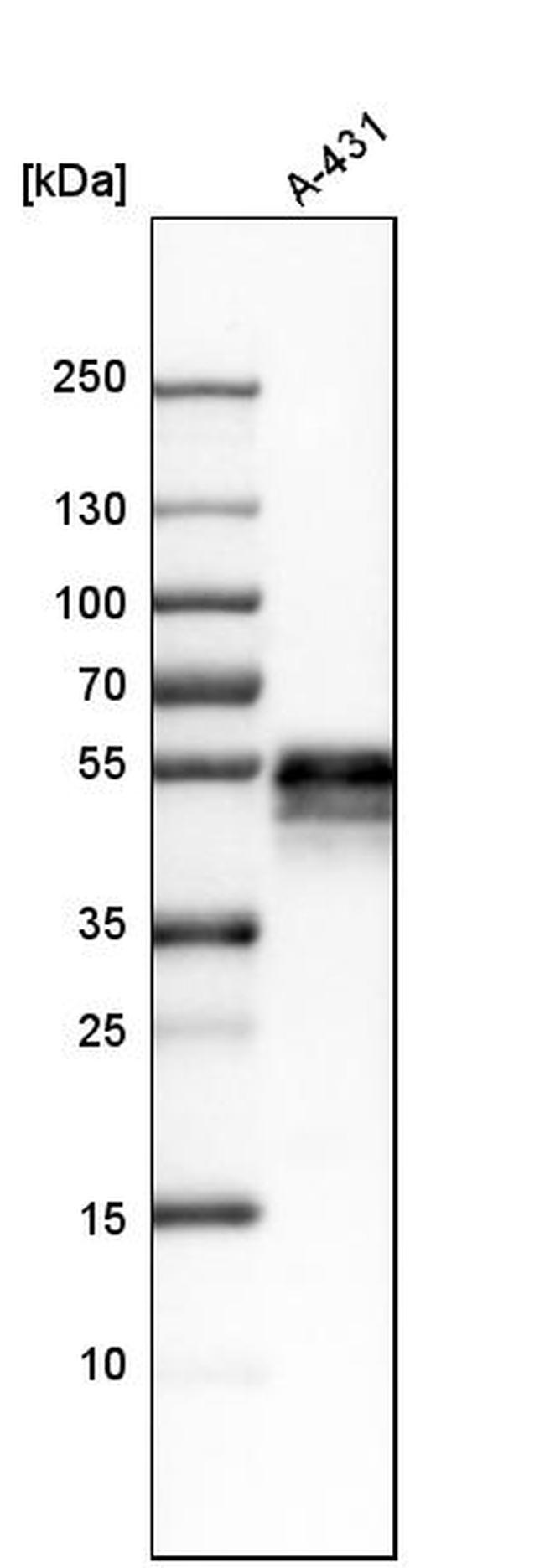 TROP2 Antibody in Western Blot (WB)