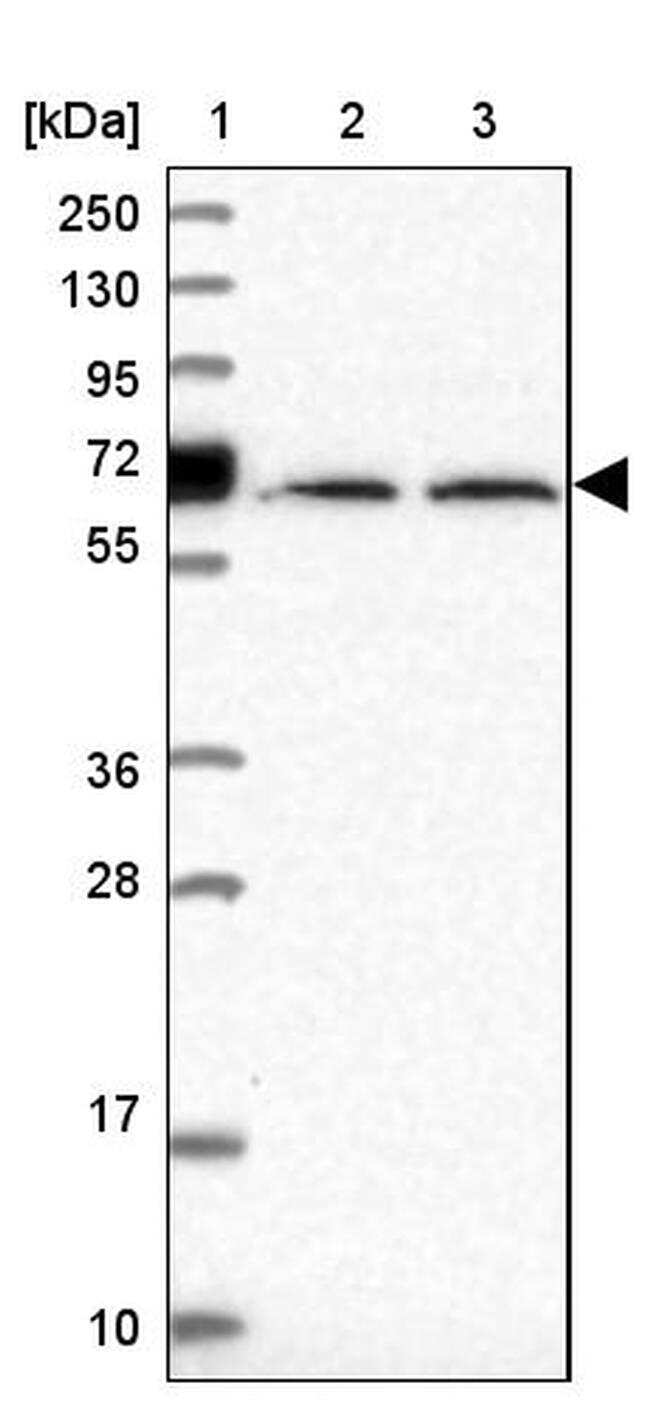 Uromodulin Antibody in Western Blot (WB)