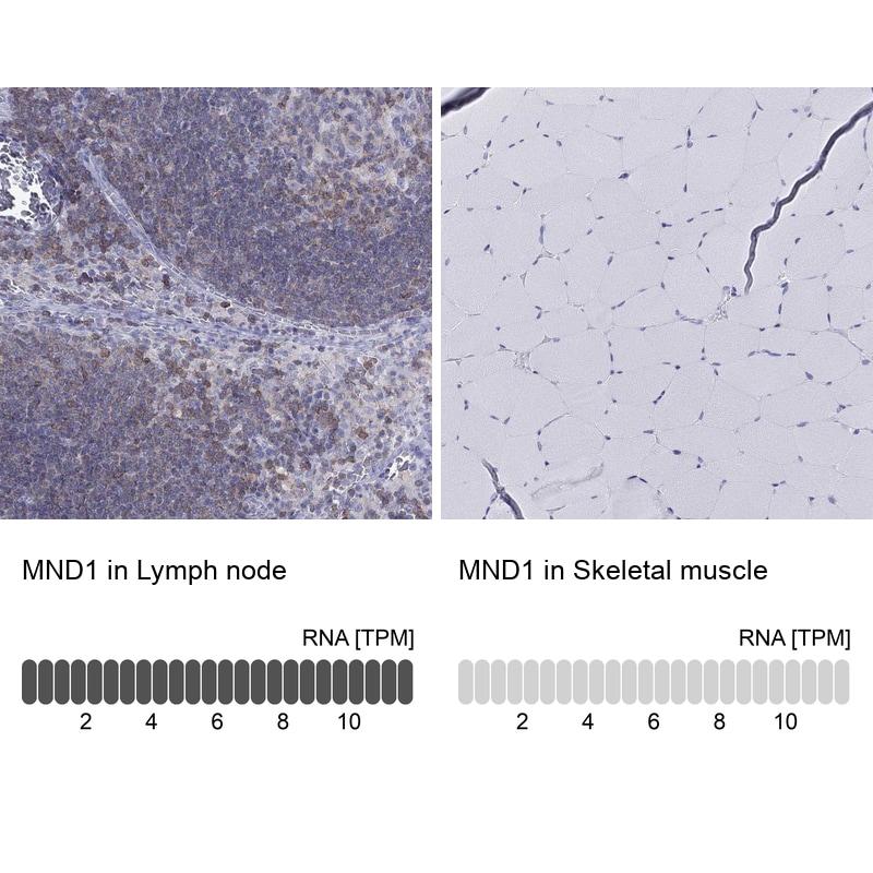 MND1 Antibody in Immunohistochemistry (IHC)