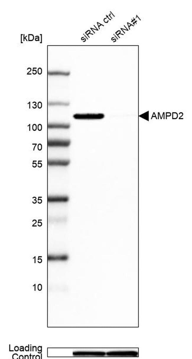 AMPD2 Antibody in Western Blot (WB)