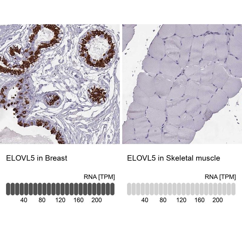 ELOVL5 Antibody in Relative expression
