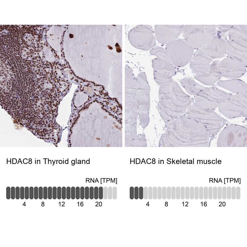 HDAC8 Antibody in Relative expression