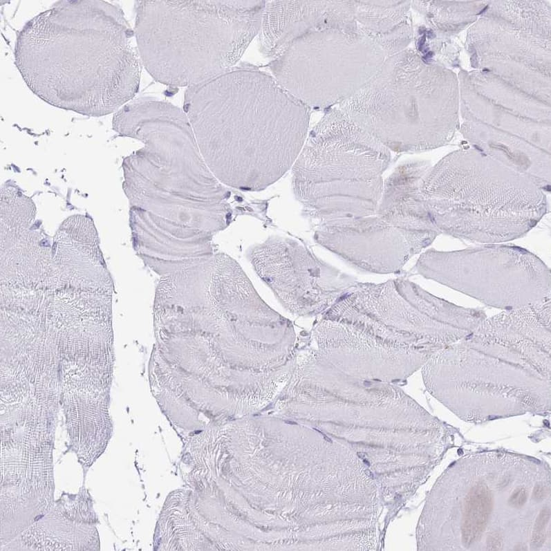 HDAC8 Antibody in Immunohistochemistry (IHC)