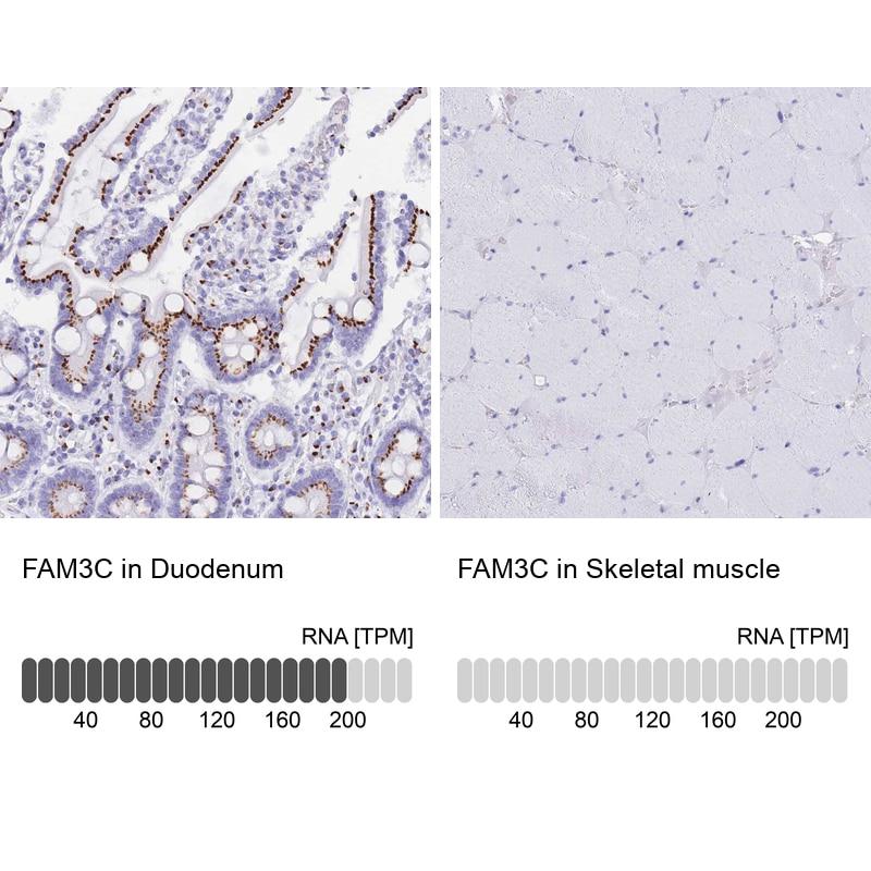 FAM3C Antibody in Immunohistochemistry (IHC)