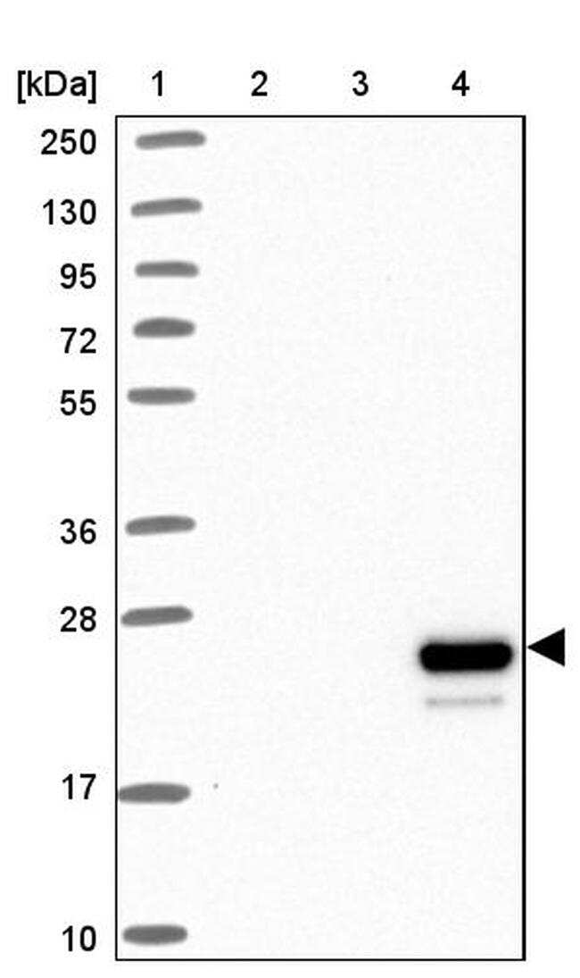 Apolipoprotein M Antibody in Western Blot (WB)