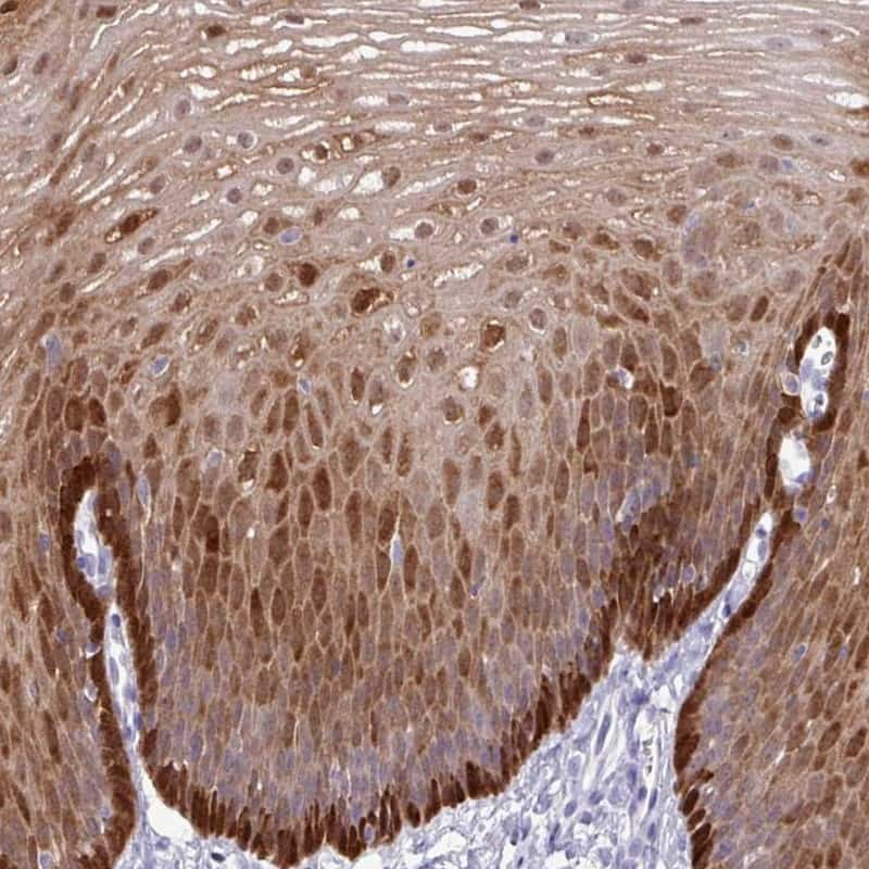 ALDH3A1 Antibody in Immunohistochemistry (IHC)