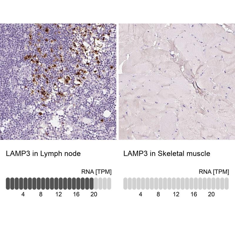 LAMP3 Antibody in Immunohistochemistry (IHC)