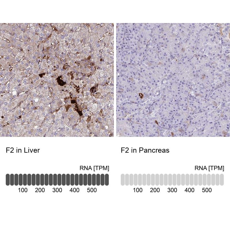 Prothrombin Antibody in Immunohistochemistry (IHC)