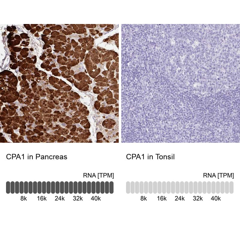 Carboxypeptidase A1 Antibody in Relative expression
