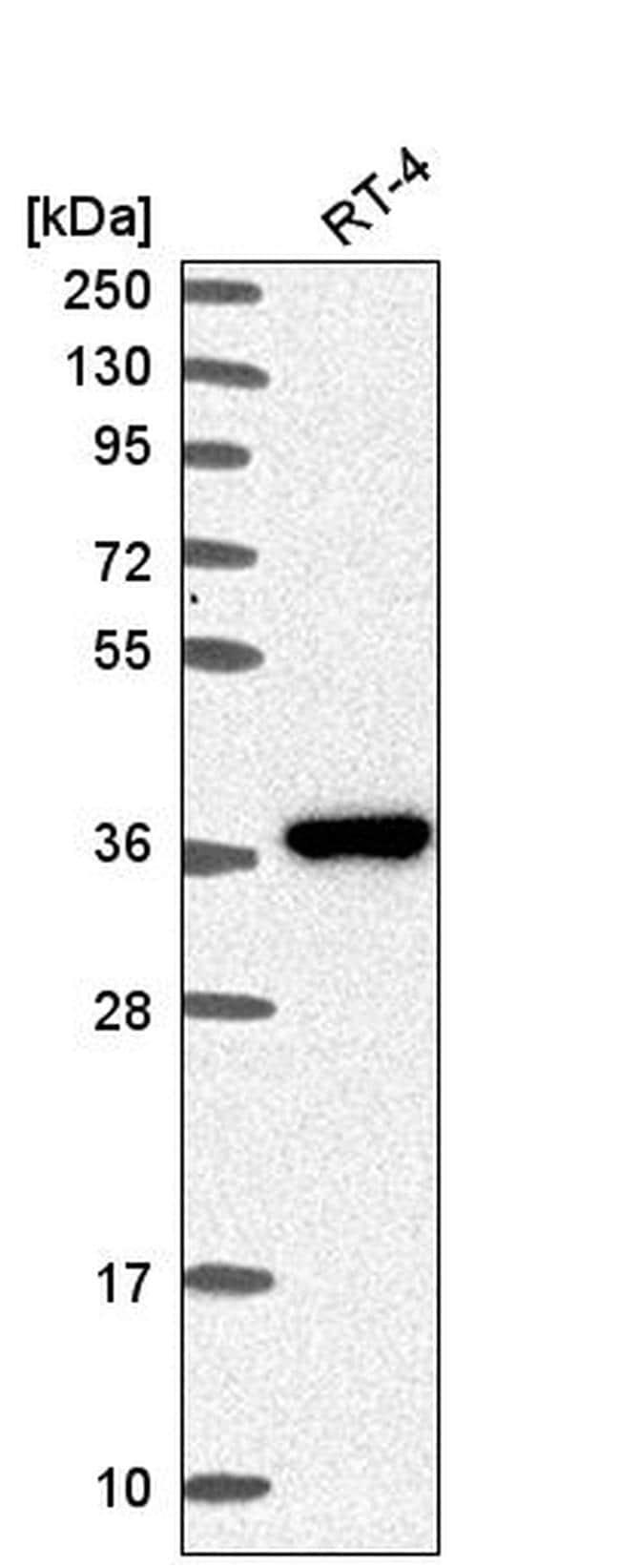 AKR1B1 Antibody in Western Blot (WB)
