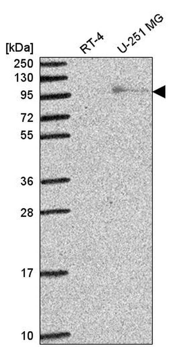 EXO1 Antibody in Western Blot (WB)
