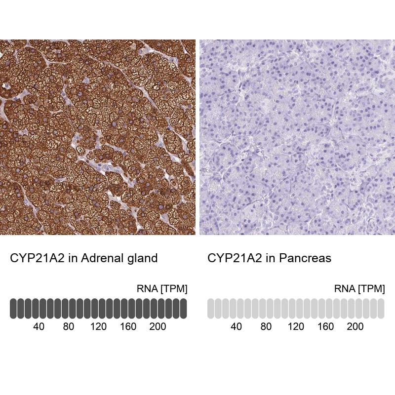 CYP21A2 Antibody in Immunohistochemistry (IHC)