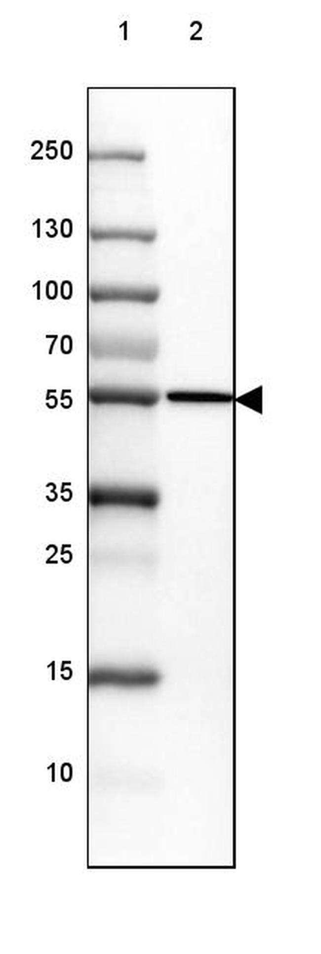 CYP21A2 Antibody in Western Blot (WB)