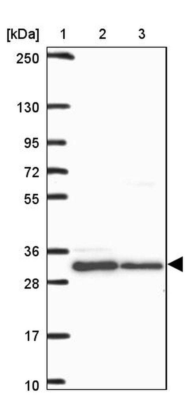 HFE Antibody in Western Blot (WB)