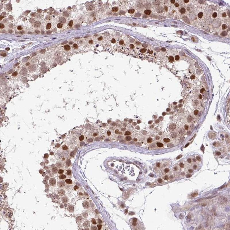 KPNA1 Antibody in Immunohistochemistry (IHC)