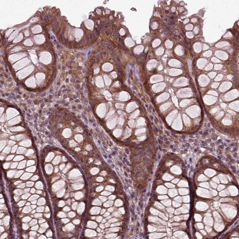 PLCD3 Antibody in Immunohistochemistry (IHC)