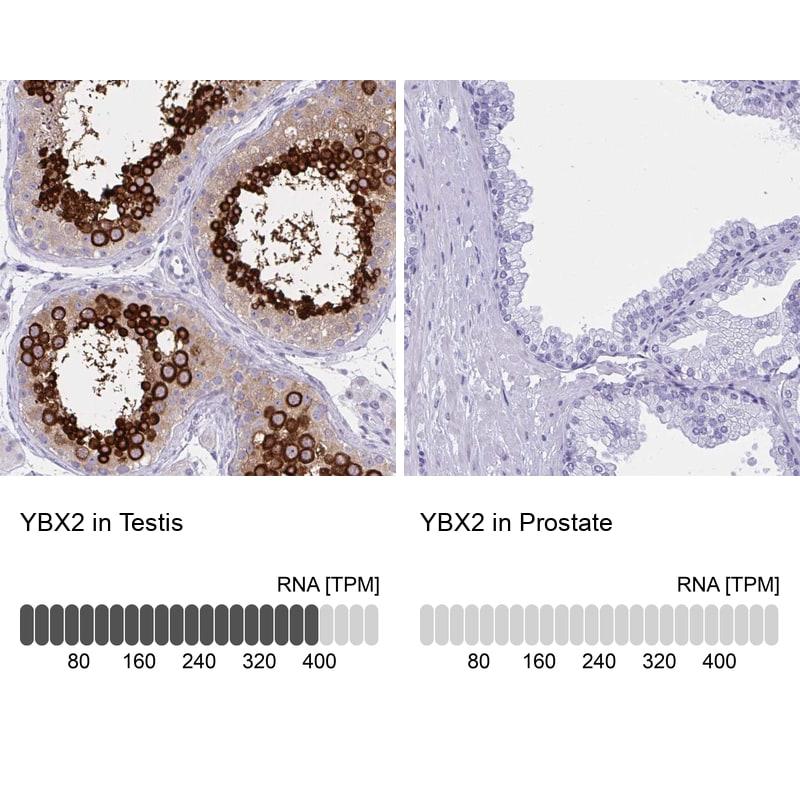 YBX2 Antibody in Relative expression