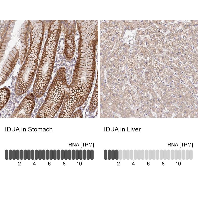 IDUA Antibody in Immunohistochemistry (IHC)