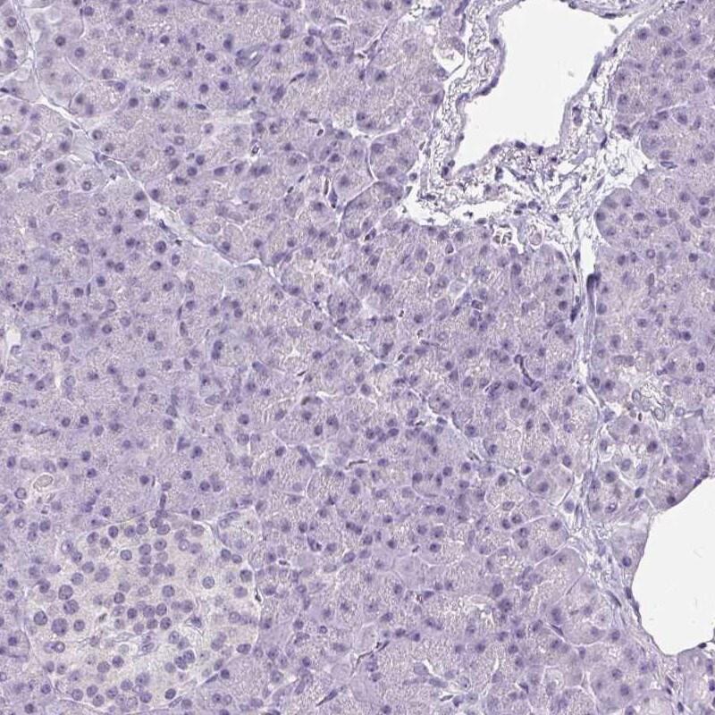 WNT10B Antibody in Immunohistochemistry (IHC)