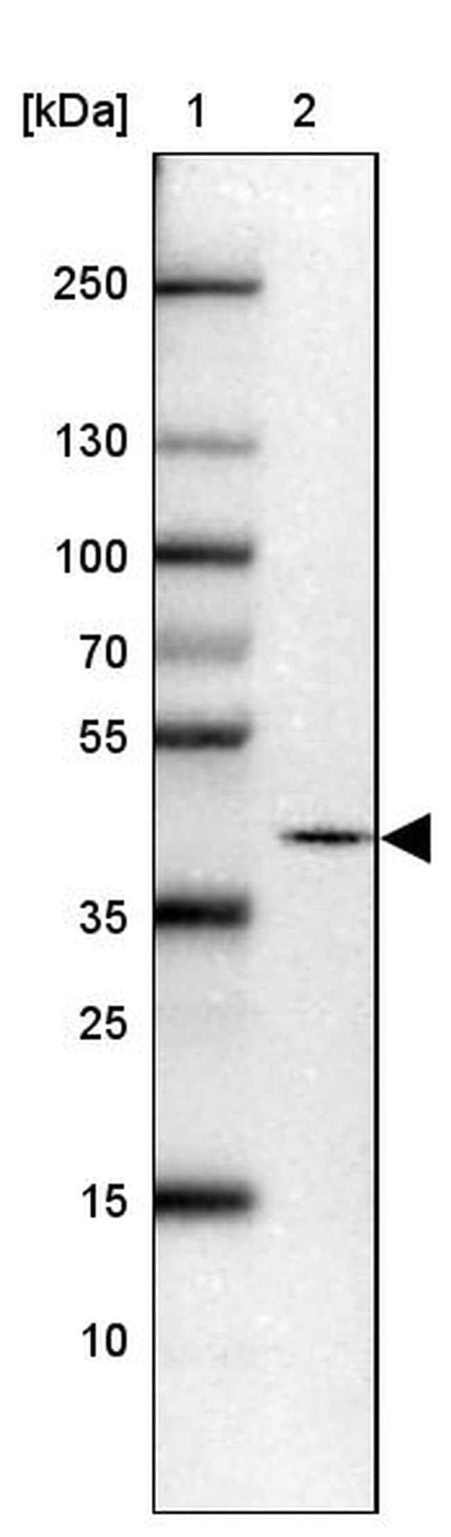 PRKCDBP Antibody in Western Blot (WB)