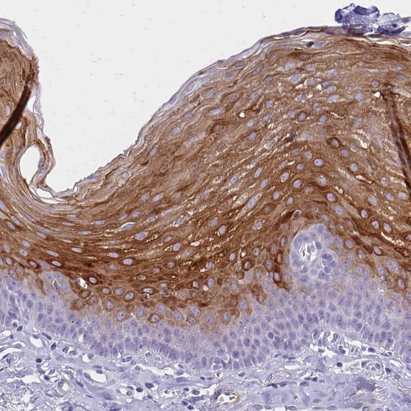Involucrin Antibody in Immunohistochemistry (IHC)
