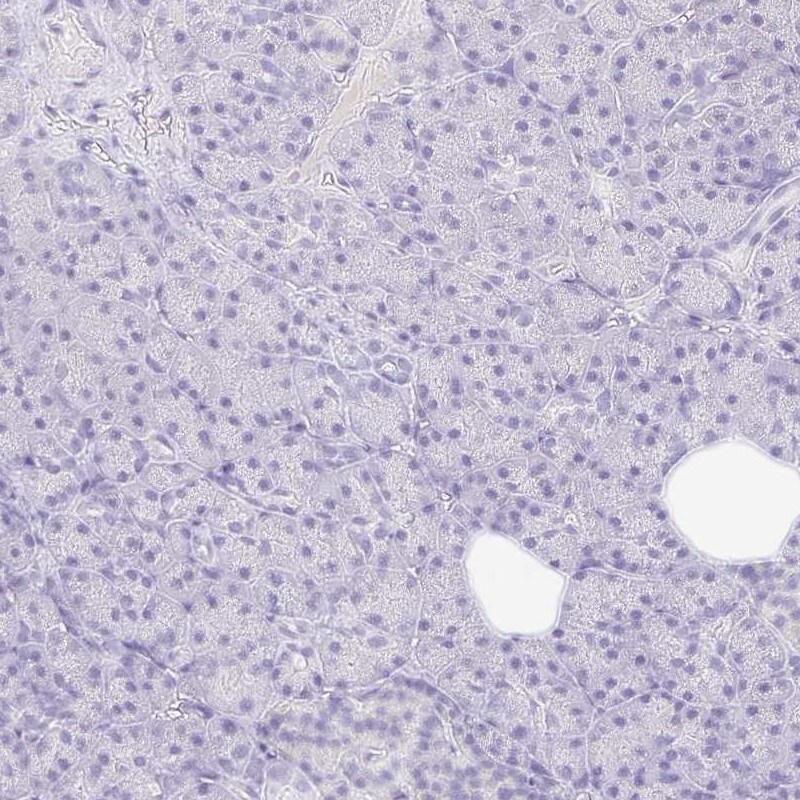TLX Antibody in Immunohistochemistry (IHC)