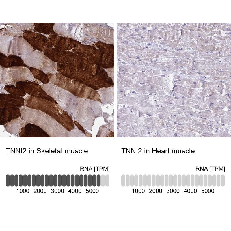 TNNI2 Antibody in Immunohistochemistry (IHC)