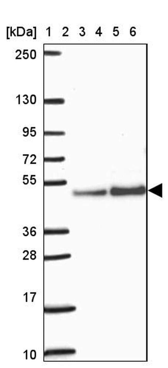 ARFGAP1 Antibody in Western Blot (WB)