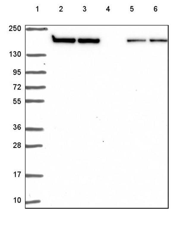 Clathrin Heavy Chain Antibody in Western Blot (WB)