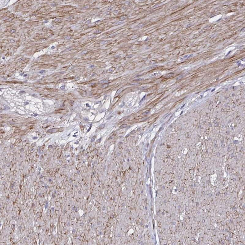 ITGB1 Antibody in Immunohistochemistry (IHC)