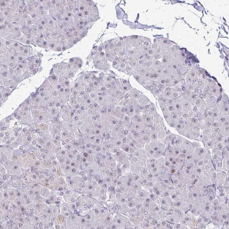 EED Antibody in Immunohistochemistry (IHC)