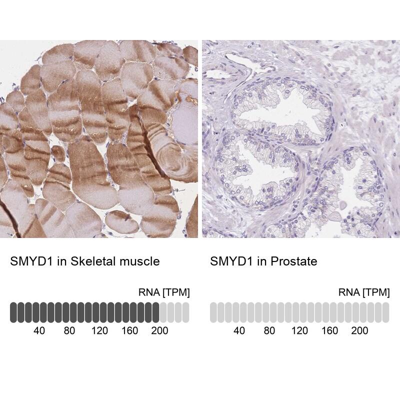SMYD1 Antibody in Immunohistochemistry (IHC)