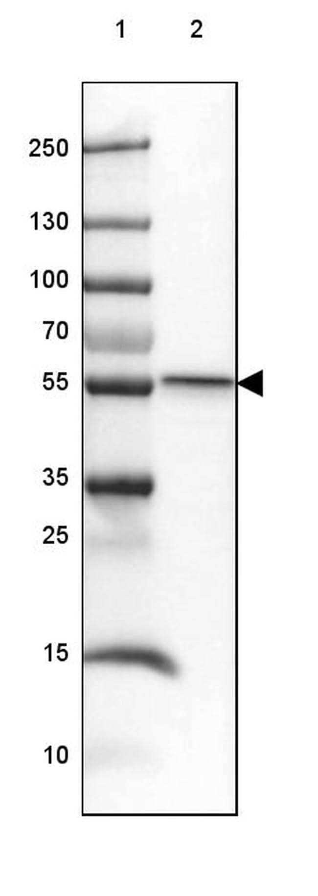 SMYD1 Antibody in Western Blot (WB)