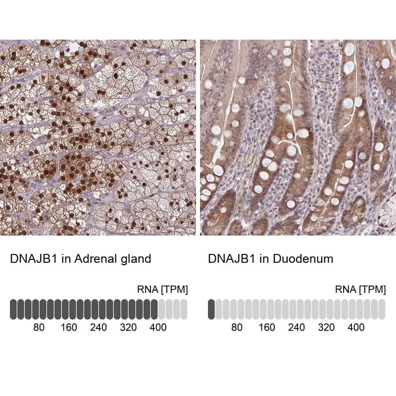 HSP40 Antibody in Relative expression