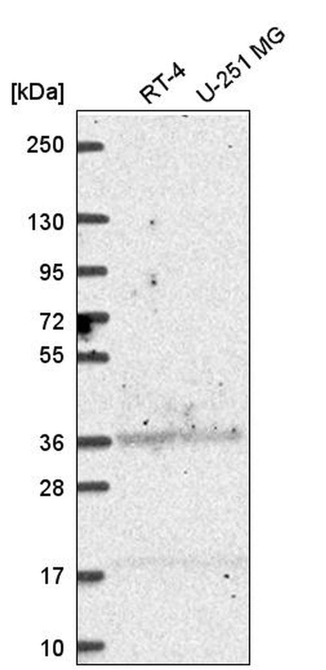 ALDH3A1 Antibody in Western Blot (WB)