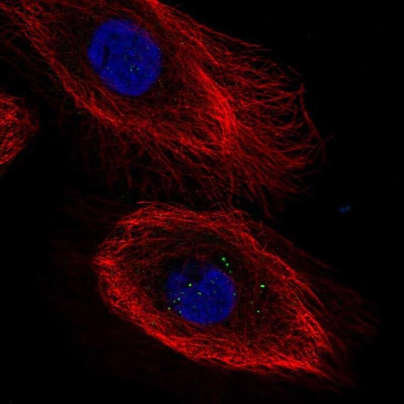 IL20RB Antibody in Immunofluorescence (IF)