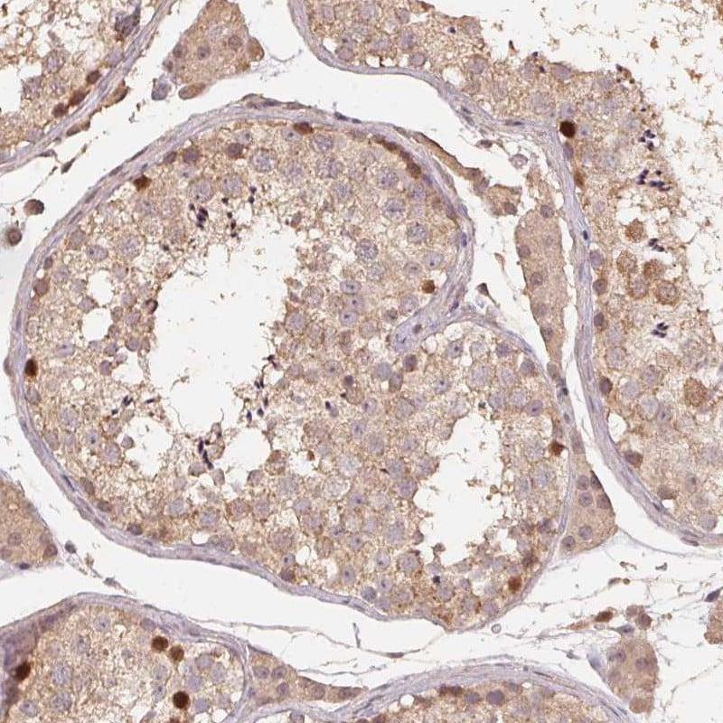 CENPF Antibody in Immunohistochemistry (IHC)
