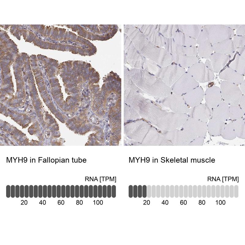 MYH9 Antibody in Immunohistochemistry (IHC)