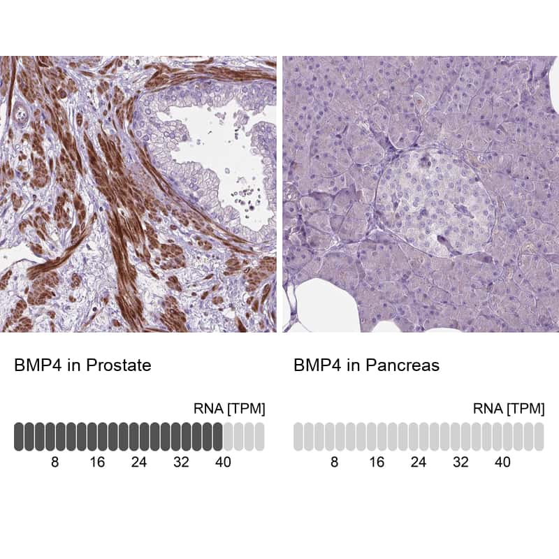 BMP-4 Antibody in Relative expression