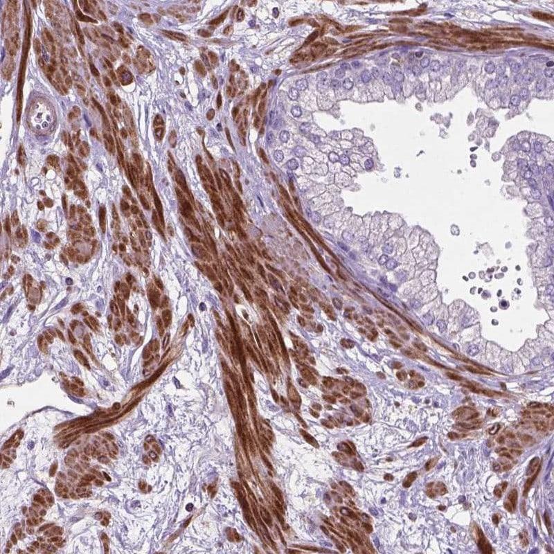 BMP-4 Antibody in Immunohistochemistry (IHC)