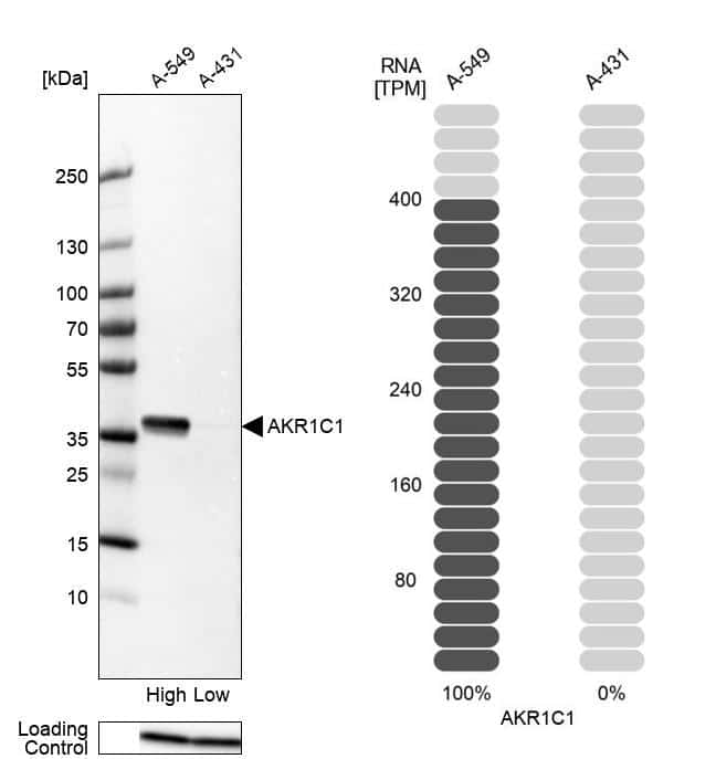 AKR1C1 Antibody in Relative expression