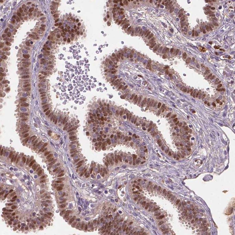 SOX17 Antibody in Immunohistochemistry (IHC)