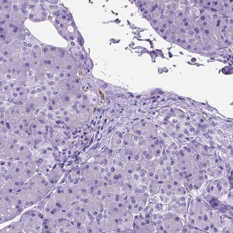 APOE Antibody in Immunohistochemistry (IHC)